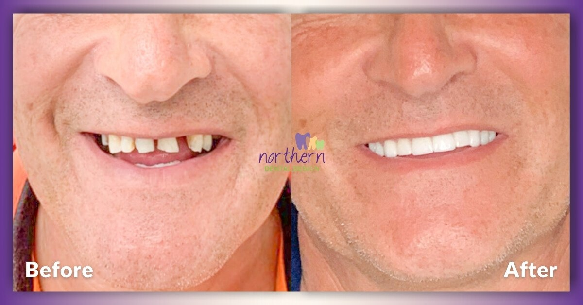 Emilio_Implants-and-Crowns_Epping_Northern-Dental-Design