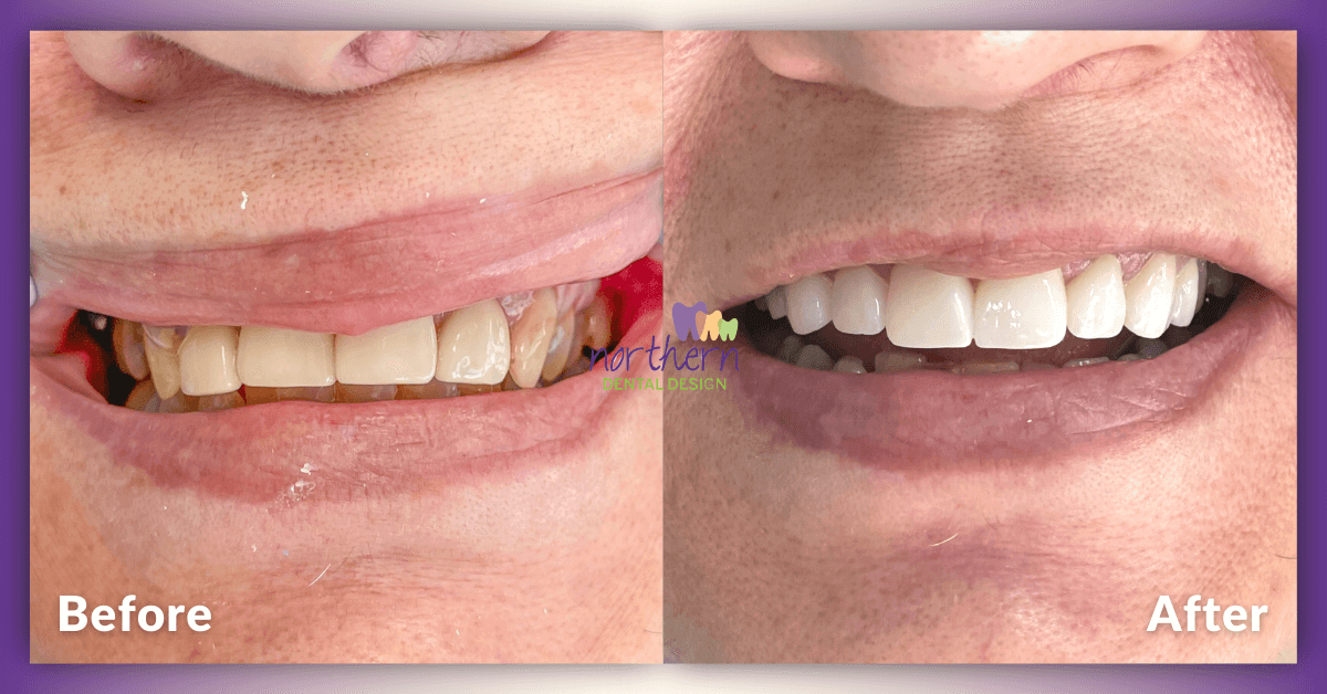 Mary-Porcelain-Crown-Porcelain-Veneers-Before-and-After