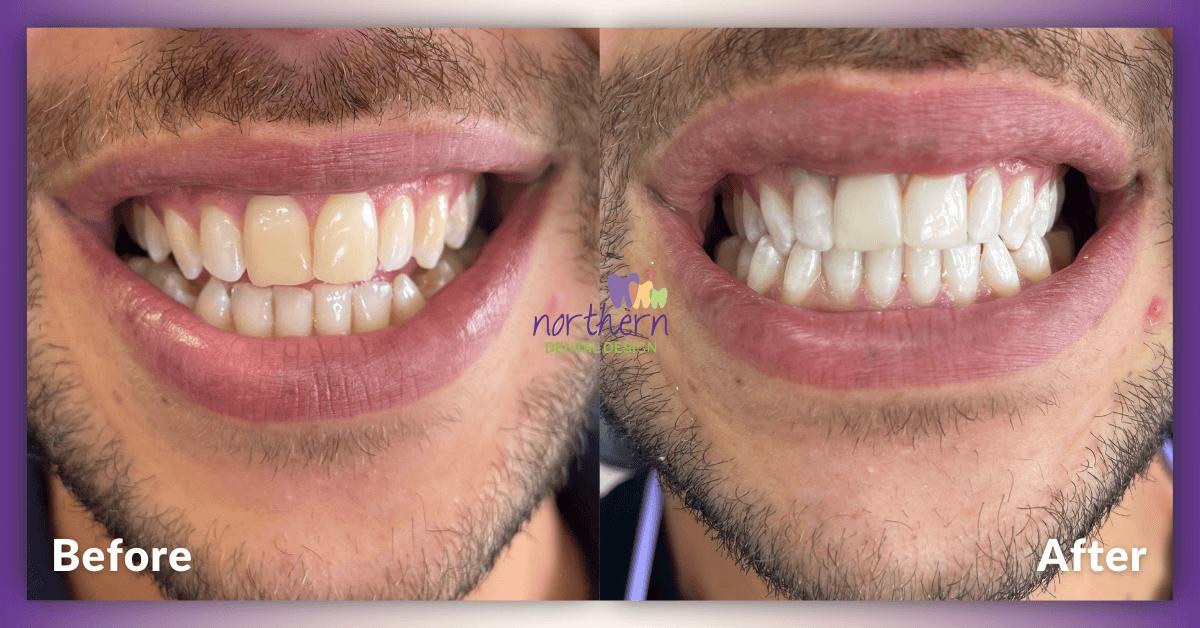 Composite-Veneers-and-Teeth-Whitening-in-Essendon