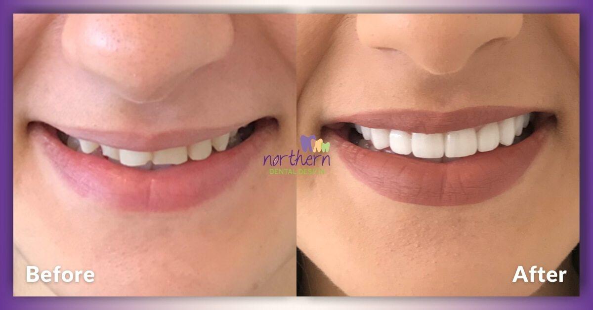 Shamoon_Veneers_Craigieburn_Northern-Dental-Design