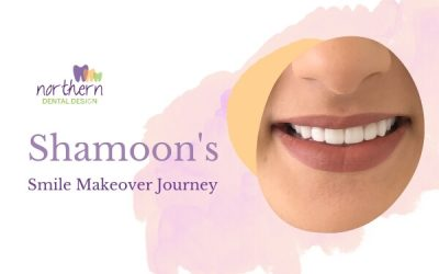 Shamoon's Smile Makeover