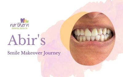 Abir's Smile Makeover
