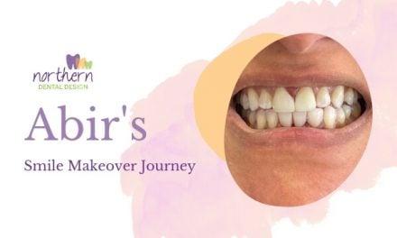 Abir's Smile Makeover
