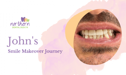 John's Smile Makeover