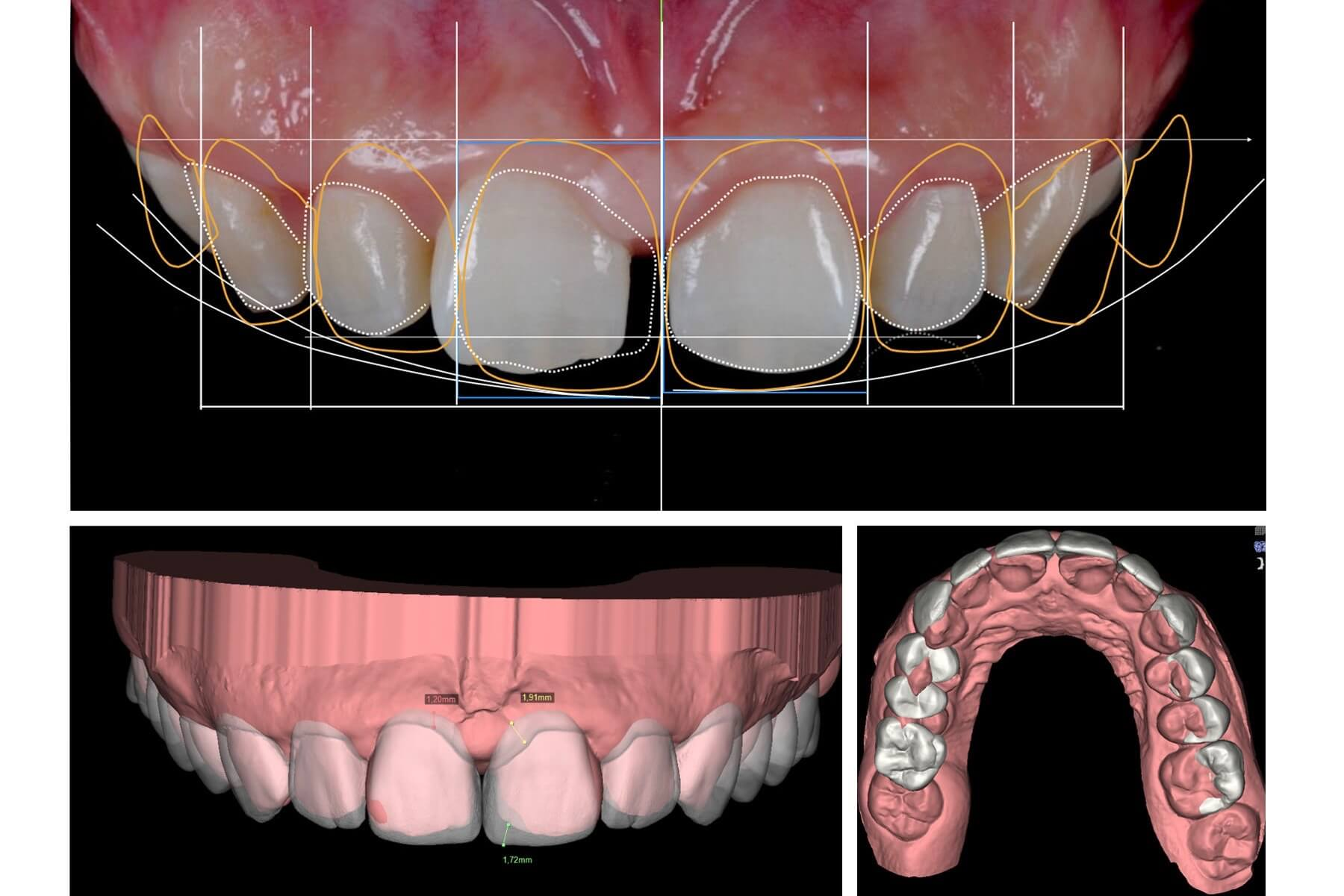 Cosmetic Dentistry Melbourne Epping