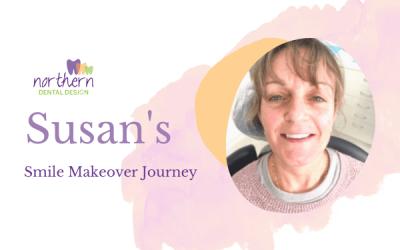 Susan's Smile Makeover