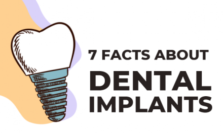 7 Surprising Facts About Dental Implants