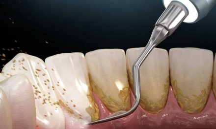 What Is Dental Plaque?